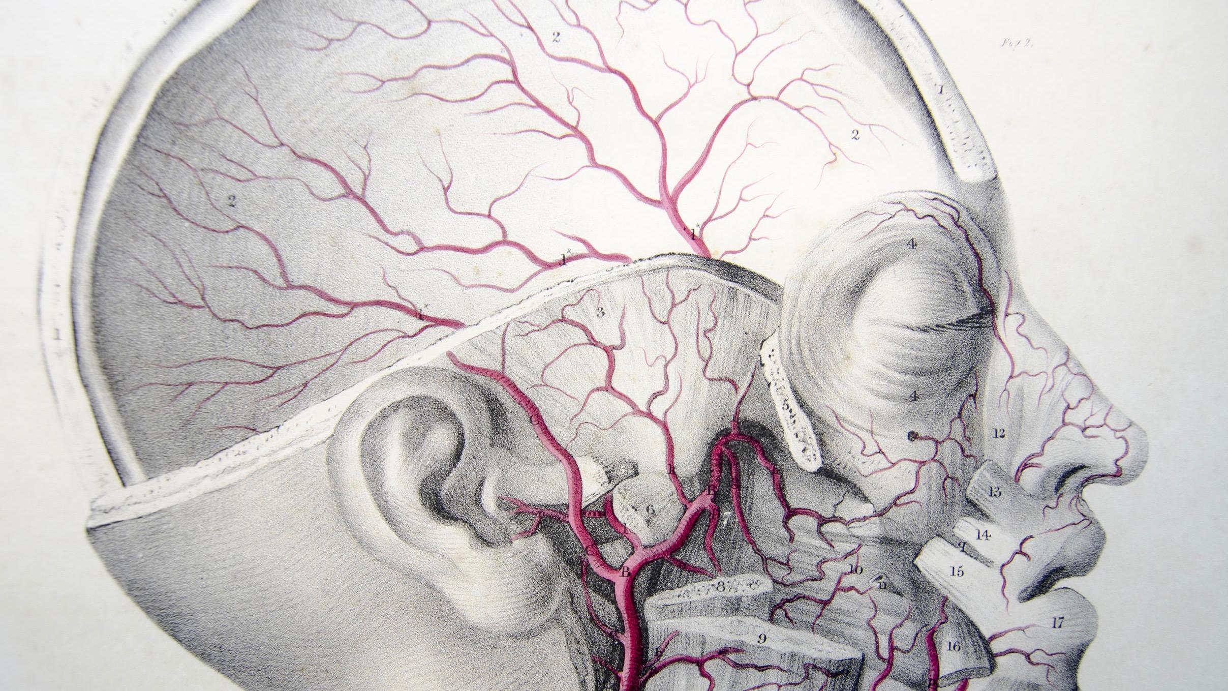 Late clot extraction can save brain cells of stroke victims