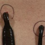 Leeches can help promote blood flow to damaged tissue.