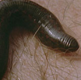 Leeches have been used by physicians since ancient times.