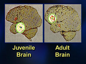 executingjuveniles-post06-braincompare