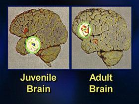 executingjuveniles-post06-braincompare